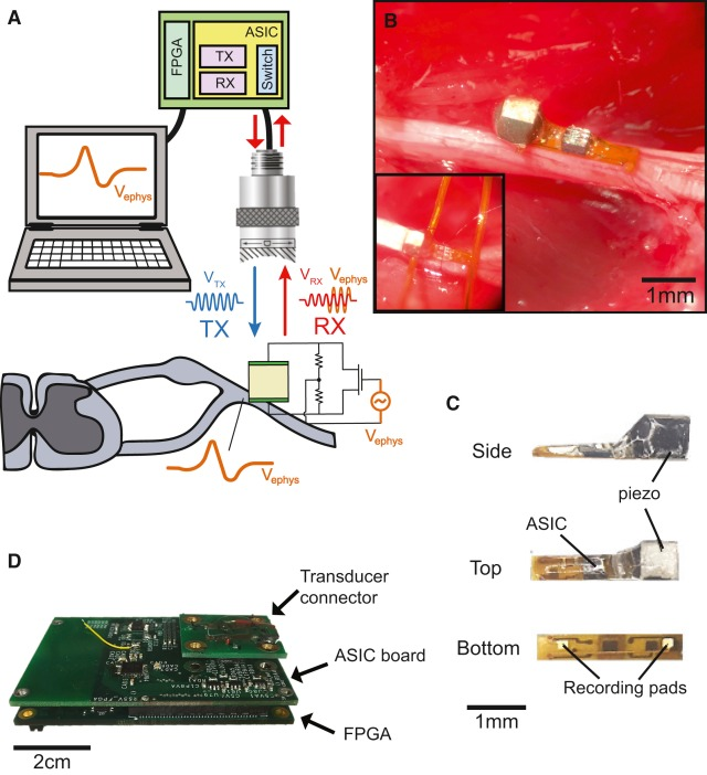 Wireless Recording in the Peripheral Nervous System with Ultrasonic Neural Dust